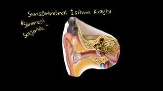Biyonik Kulak (Koklear İmplant) izle