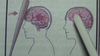 Kafatası-beyin yaralanması izle