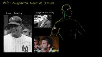 ALS - Amyotrofik Lateral Skleroz izle