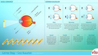 İnsan gözünde meydana gelen görme olayının gerçekleşmesini ve görme kusurlarını anlatan infografik çalışması.
